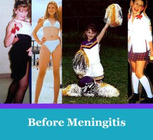 Abby before meningitis changed her life
